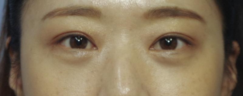 눈밑지방제거 수술후 1주일